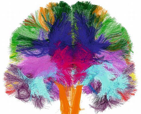 dn2M cerveau